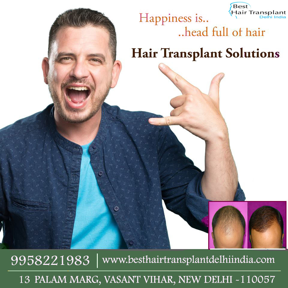 #hairsurgerycost, #besthairtransplantdelhiindia, #hairreplacementsurgery, #hairimplantsurgery, #hairfalltreatment, #FUE, #FUT